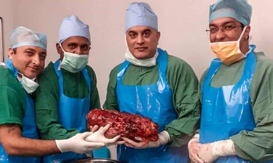 پزشکان هندی کلیه 7.4 کیلوگرمی را از بدن یک بیمار خارج کردند